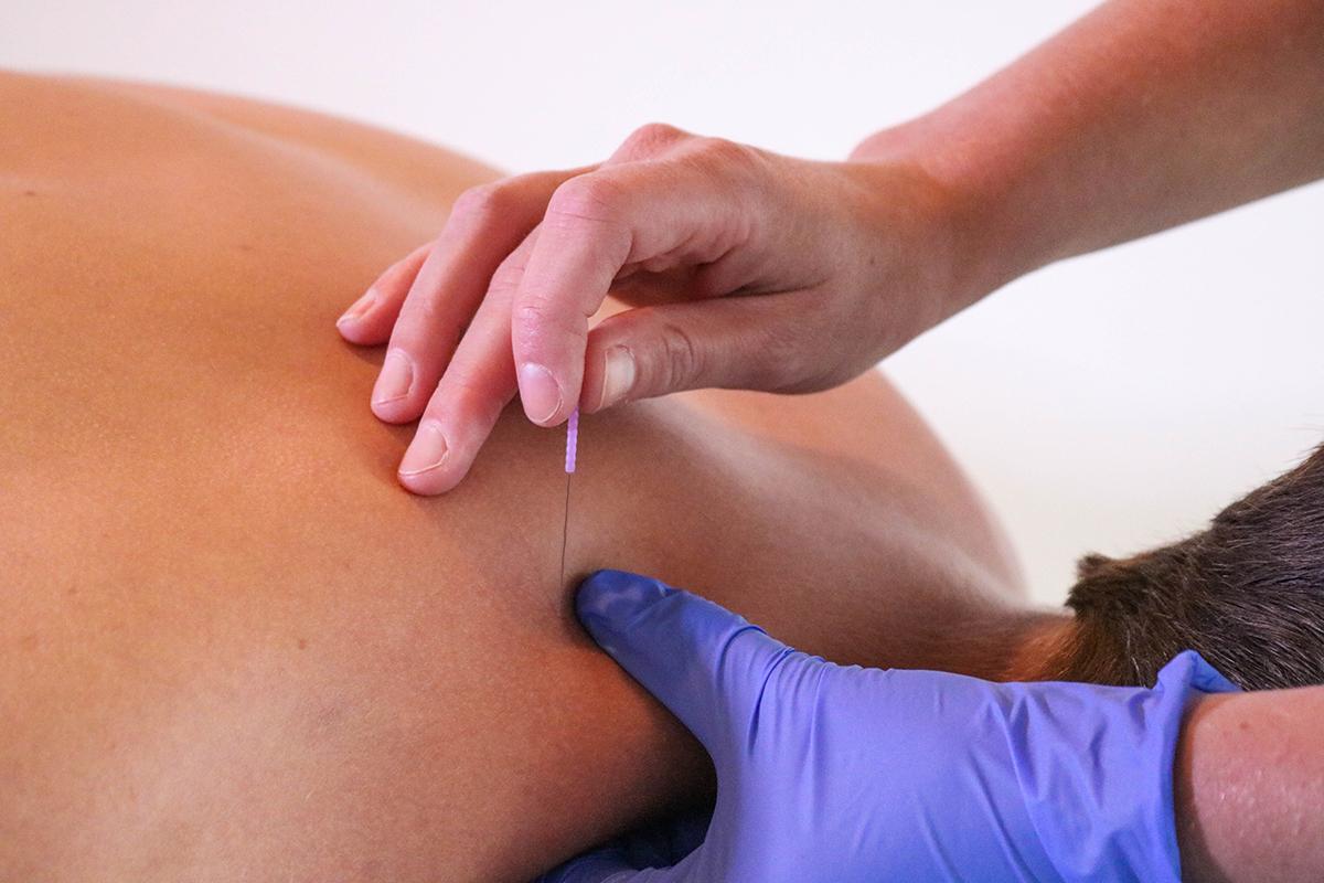 dry needling - medifysio kaatsheuvel